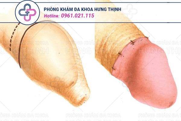 Quy trình tiểu phẫu cắt bao quy đầu