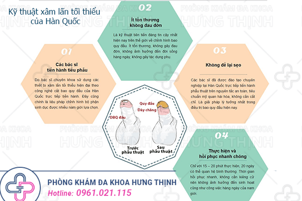 Quy trình cắt bao quy đầu chuẩn tại Hà Nội