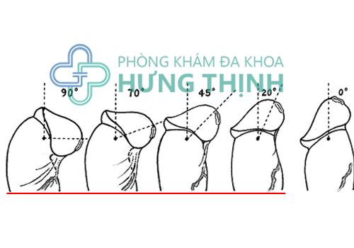 Địa chỉ cắt dây thắng bao quy đầu an toàn tại Hà Nội