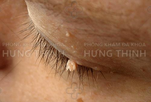 Một số hình ảnh của bệnh sùi mào gà