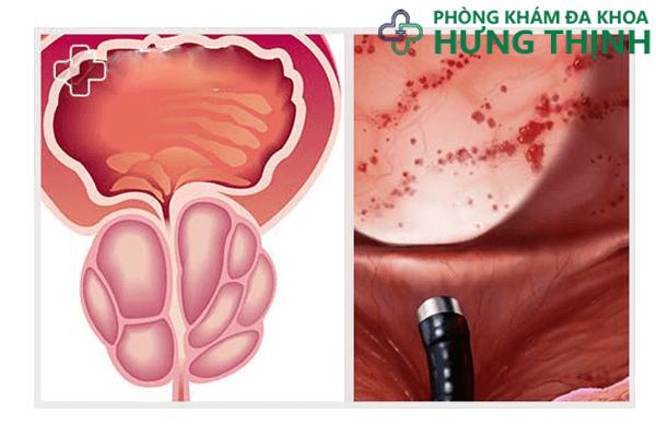 Nguyên nhân gây viêm túi tinh ở nam giới và cách điều trị