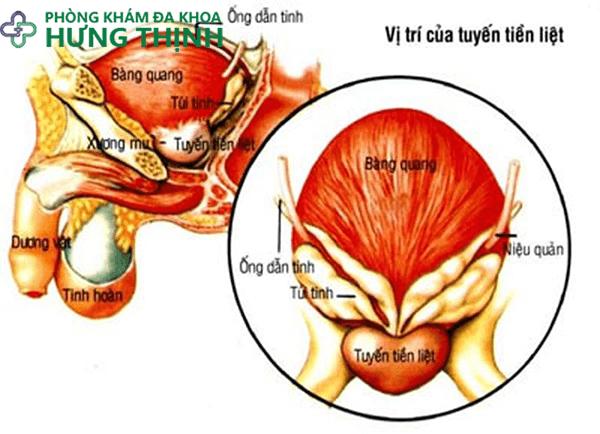 Triệu chứng của bệnh viêm tuyến tiền liệt